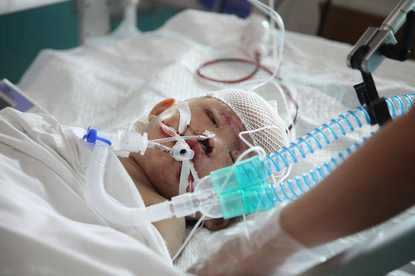 Any cases of infants in comas for years?