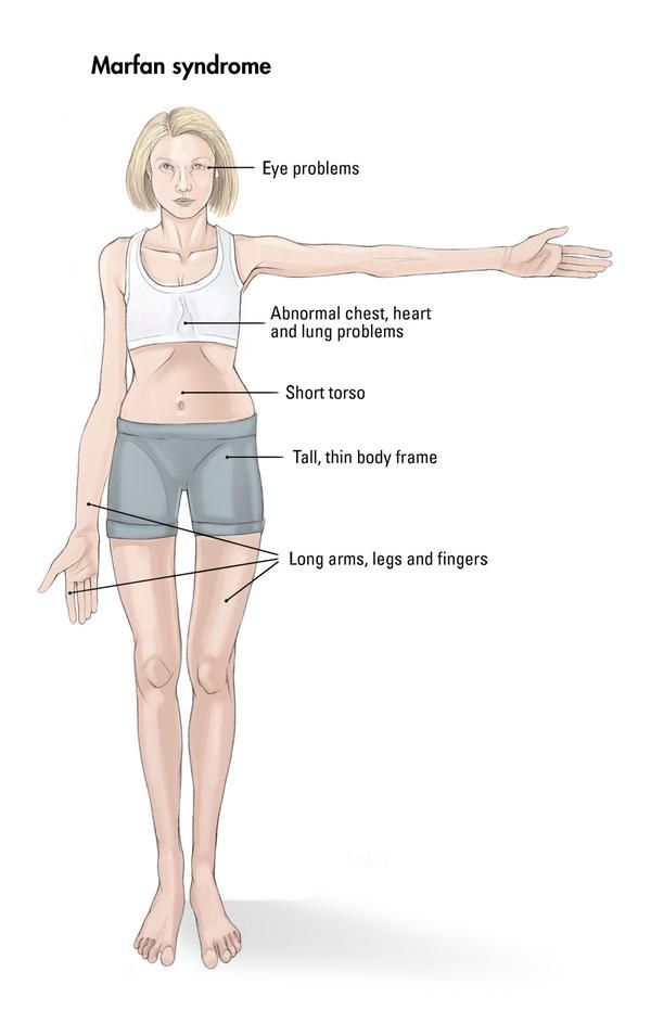 Could you tell me what are common symptoms of Marfan syndrome?