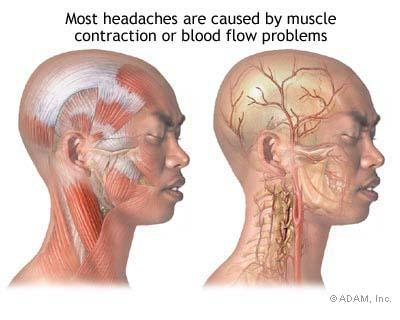 What causes orgasim headaches