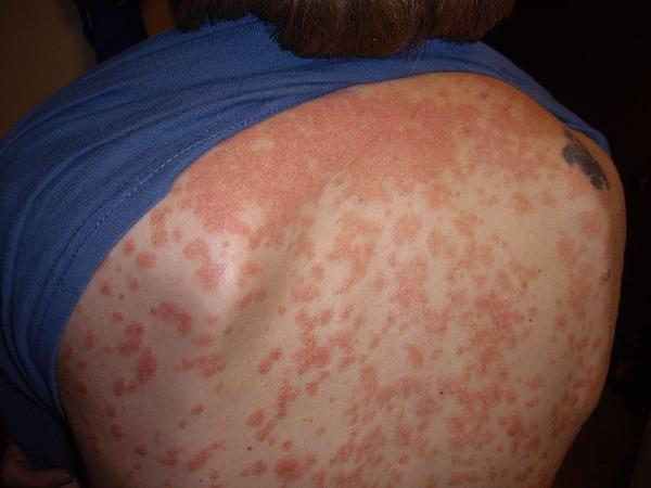 Add on to last q, guttate psoriasis over 2 wks?