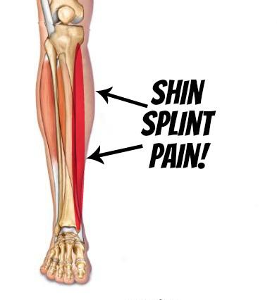 Best Running Shoes For Medial Shin Splints