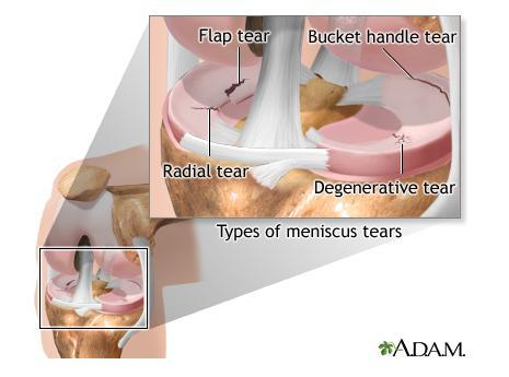 How can you reduce pain and swelling one month after meniscus surgery?