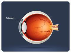 What are the causes of a cataract?