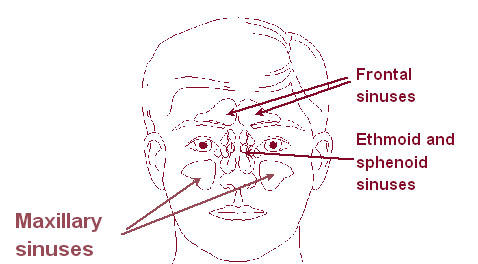 I tried using homeopathy to cure my sinus , but its still not working . What do you think I should do now ?