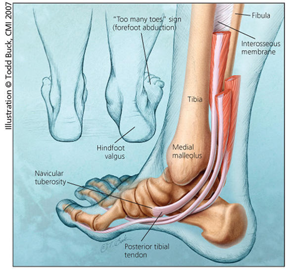 What is posterior tibialis tendonitis?