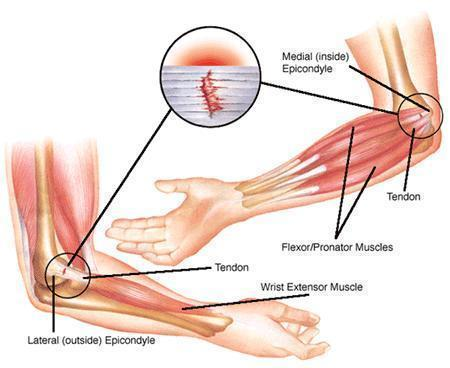 Epicondylitis in the elbow . What causes this.?