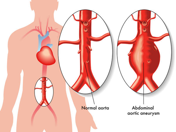 How long can symptoms be present before a 10cm abdominal aortic aneurysm ruptures?
