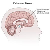 How can  Parkinson's disease effect the nervous system?