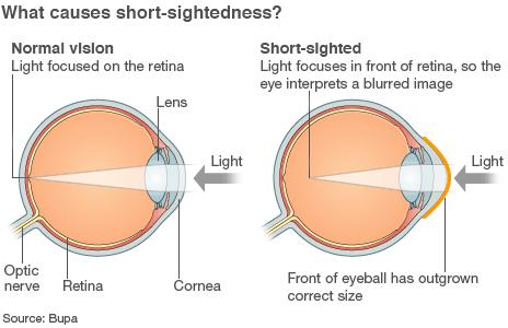 I have really horrible eye sight, (short sightedness) is thete any non surgical way to improve my eye sight.