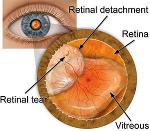 I'm scared of getting a retinal detachment! how can I prevent this?