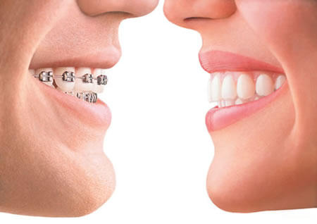 Which is better, invisalign or braces?