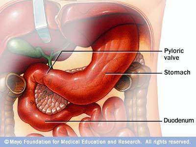 What does extensive enterogastric biliary reflux mean?
