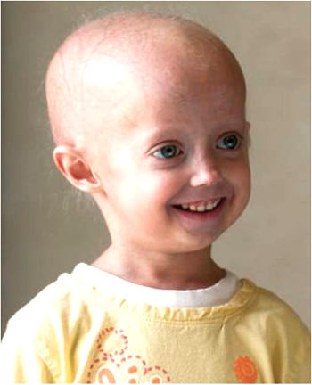 What is the disease progeria caused by?
