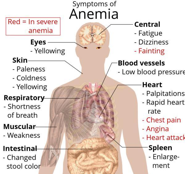 Can you please lay out the primary symptoms of anemia?