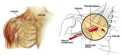 What is thoracic output syndrome and how can it be treated?