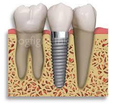 Should i get a root canal with crown lengthening and a crown, or just extract the molar? Which one is faster?
