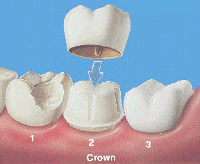 The gums are sore around a crown. Is this normal? What does it mean?