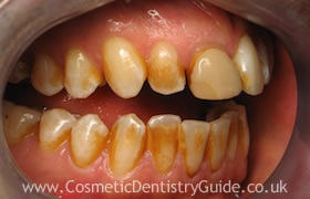 Why is there teeth staining even though they brush and floss their teeth?
