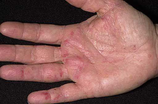 Okay, so I have that dyshidrosis thing, where you bubbly spots on hands, I have a few , i don't have cracks or anything bad, but how do I get rid of it?