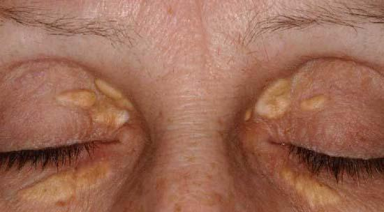 Can you have xanthelasma and not have high cholesterol?