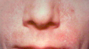 Red skin & dry chaffing around upper lip area.Cant shave moustache?