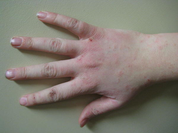 When an eczema leaves after medication and keeps coming back after a while over and over again what does that signify?