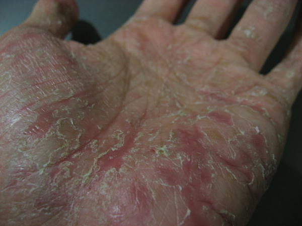 Just started noticing cracks on my hands that are itchy, small and sometimes have small head like looking things. They come and go quickly. Any diagn?