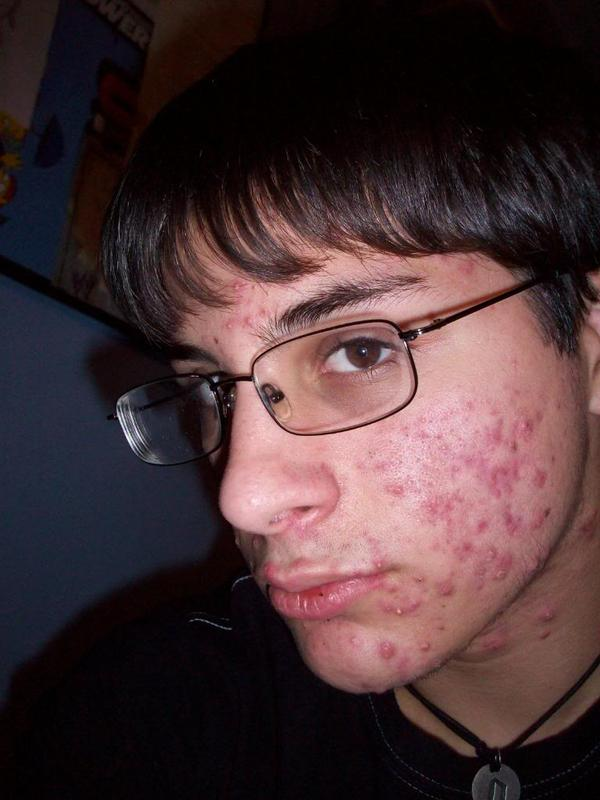 dating girl with acne scars My only insecurity i have is my acne scars i'm in college and find it difficult to get past the dating stage with a guy because i'm afraid he won't like me without makeup.