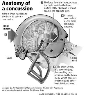I'm a 45 yo female who got hit in the head at age 13. Lost conscious & I was never seen by dr. Is there a non-evasive procedure to see if I need help?