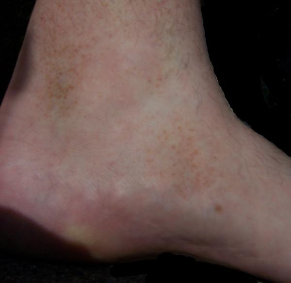 My mother have brown spots which started to spread upwards her legs. She had this after tahbso. What can we do about this?