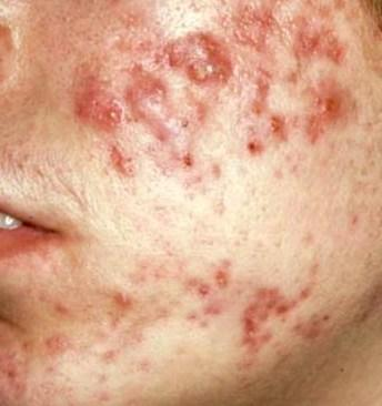 Have acne. Any natural treatment which can be practised at home? I have oily skin.