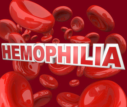 What is the prognosis for a person suffering from severe hemophilia, but getting regular factor viii replacement therapy?