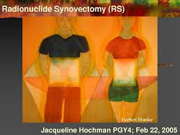 Which one is more safe chemical synovectomy or radioactive synovectomy for patients suffering from hemophilia?