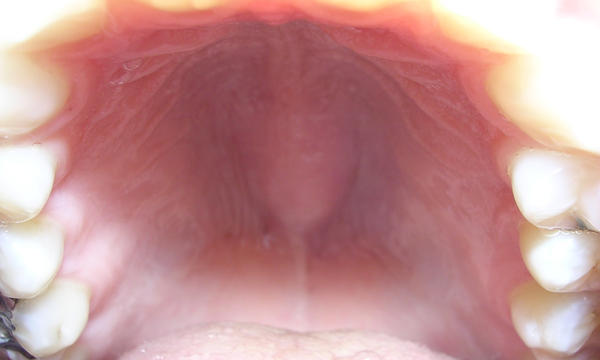 My soft palate in my throat is swollen and red. When i push on it yellow stuff comes out of two sores back there. What could this be from?