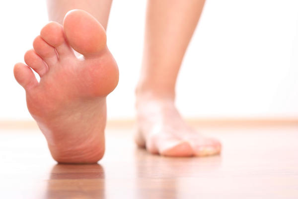 My wife is suffering from swelling in feet and legs if she stands on them for too long while engaged in heavy activity. What could this be