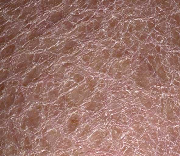 Permanent treatment for scaly skin on legs?