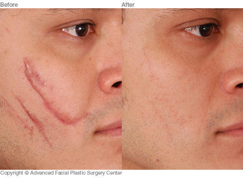 Does the laser treatment completely get rid of scars?
