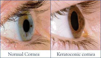 How to overcome keritoconus?
