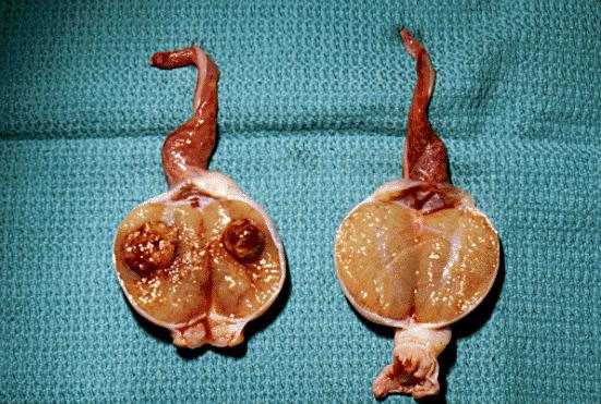 Testis cancer causes?