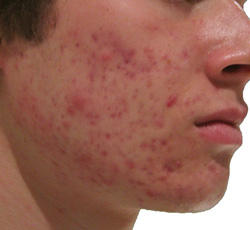 Are there any natural home remedies to help with acne problems?