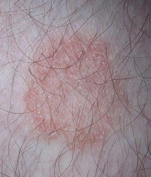 I have developed ringworm on the lower thigh. How can I get rid of it completely? I have used so many ointments till now. Please suggest me.