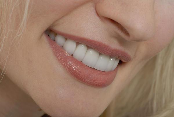 Porcelain Veneers - Doctor insights on HealthTap