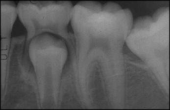 How do I relieve 12 year molar teething pain?