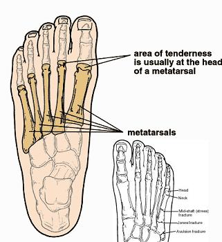 Where would it hurt if you broke a metatarsal?