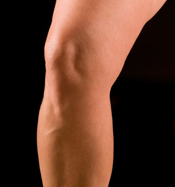 How can you treat sore knees that are not swollen?