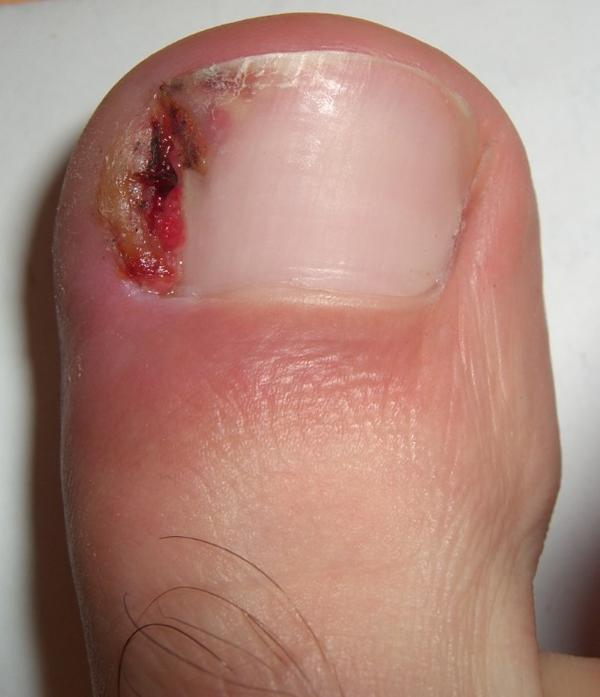 What to do ingrown toe nail? My toe is big and red I have like meat coming form between my toe nail and my nail blood be coming out of it it hurts