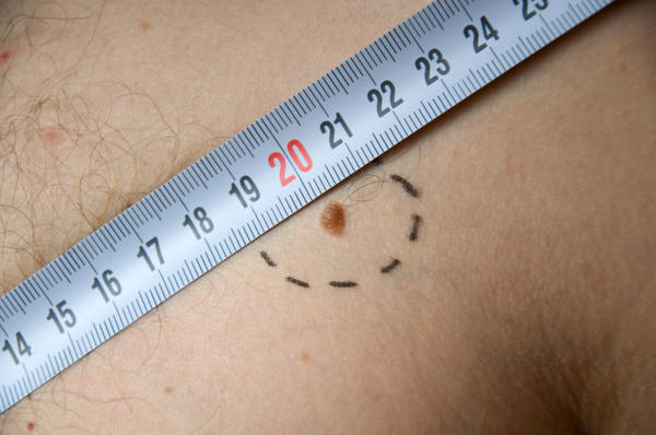 How is skin cancer treated? How are cancerous moles treated?
