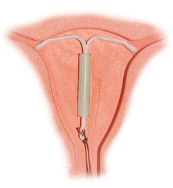 The mirena (levonorgestrel) IUD is sited abnormaly low being in lower uteirne segment extending towards the cervix.I have low lying iud.Do they have to remove or repla?