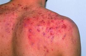 What should I do to take care of back acne?