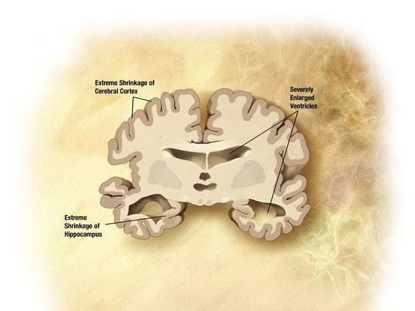 What usually causes alzheimer's disease?